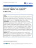 """Báo cáo y học: """"Adrenocortical carcinoma presenting as varicocele and renal vein thrombosis: a case report."""""""