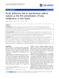"""báo cáo khoa học: """"Acute abdomen due to spontaneous splenic rupture as the first presentation of lung malignancy: a case report"""""""