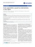 "Báo cáo y học: ""Acute appendicitis caused by endometriosis: a case report"""