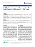 """Báo cáo y học: """"Umbilical hernia rupture with evisceration of omentum from massive ascites: a case report"""""""