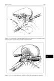 Pediatric Laparoscopy - part 6