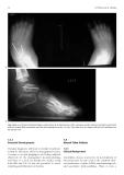 Paediatric Musculoskeletal Disease - part 3