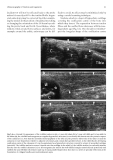 Paediatric Musculoskeletal Disease - part 6