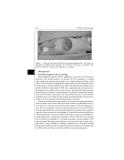 Pediatric Neurosurgery - part 7