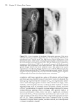 Pediatric PET Imaging - part 6