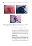 Practical Pediatric Gastrointestinal Endoscopy - part 10