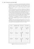 Twelve-Lead Electrocardiography - part 4