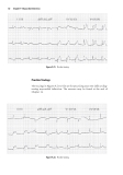 Twelve-Lead Electrocardiography - part 6