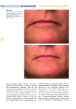 Cosmetic Dermatology (part 8)