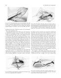 Craniomaxillofacial Reconstructive and Corrective Bone Surgery - part 5