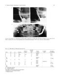 Craniomaxillofacial Reconstructive and Corrective Bone Surgery - part 6