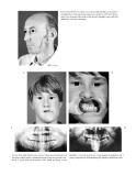 Craniomaxillofacial Reconstructive and Corrective Bone Surgery - part 7