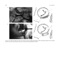 Craniomaxillofacial Reconstructive and Corrective Bone Surgery - part 10