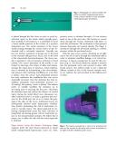 Laparoscopic urologic surgery in malignancies - part 10