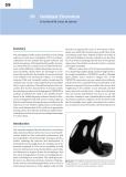 Total Knee Arthroplasty - part 10