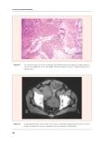 PROSTATIC DISEASES - PART 6