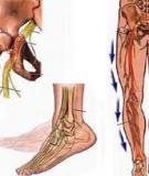 Mạch hiển viêm dây thần kinh