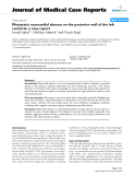 """Báo cáo y học: """" Metastatic myocardial abscess on the posterior wall of the left ventricle: a case report"""""""