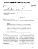 """Báo cáo y học: """"  Postangiographic contrast enhancement mimicking acute subdural hemorrhage in a patient with severe occipital headache and neurological symptoms: a case report"""""""