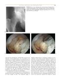 Operative Hip Arthroscopy - part 2