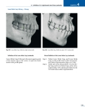Cephalometry A Color Atlas and Manual -  part 5