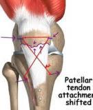 Quản lý phẫu thuật xương bánh chè
