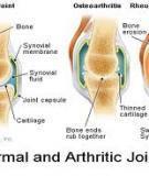Trị liệu trong điều trị các bệnh cơ xương