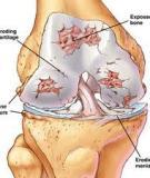 Tài liệu tham khảo về Viêm xương khớp