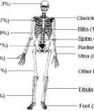 Hội chứng Hoại tử xương