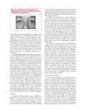 Les troubles de l'intégration visuelle - part 2