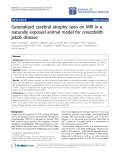 "Báo cáo hóa học: ""Generalized cerebral atrophy seen on MRI in a naturally exposed animal model for creutzfeldtjakob disease"""