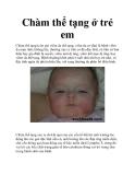Chàm thể tạng ở trẻ em
