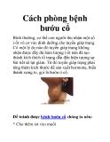 Cách phòng bệnh bướu cổ