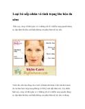 Loại bỏ nếp nhăn và tình trạng lão hóa da sớm