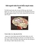 Khi người nhà bị tai biến mạch máu não