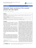 "báo cáo hóa học:""   Metastatic breast carcinoma of the coracoid process: two case reports"""