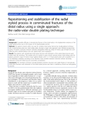 "báo cáo hóa học:""  Repositioning and stabilization of the radial styloid process in comminuted fractures of the distal radius using a single approach: the radio-volar double plating technique"""