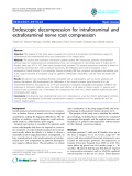 """báo cáo hóa học:"""" Endoscopic decompression for intraforaminal and extraforaminal nerve root compression"""""""