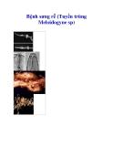 Bệnh sưng rễ (Tuyến trùng Meloidogyne sp)