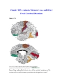 Chapter 027. Aphasia, Memory Loss, and Other Focal Cerebral Disorders
