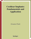 Cochlear Implants: Fundamentals and Application