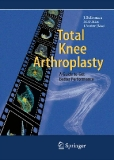 Total Knee Arthroplasty: A Guide to Get Better Performance