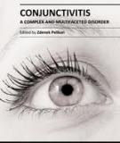 CONJUNCTIVITIS – A COMPLEX AND MULTIFACETED DISORDER