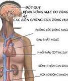 Những vấn đề cần lưu ý về tăng huyết áp