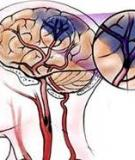 Thiếu máu não thoáng qua ở người cao tuổi