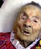Người già dễ mắc bệnh về da