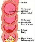 Những mẹo ăn uống giảm cholesterol