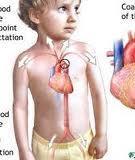 Nguyên nhân tim bẩm sinh ở trẻ em