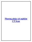 Phương pháp xét nghiệm CT Scan.