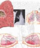 Những điều cần biết về Áp xe phổi